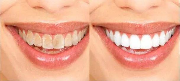【博士街&靓齿口腔】笑容是和煦的阳光和美好的语言!29.9/39.9元享【单人洁牙/亲子洁牙套餐】